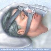 asv machine sleep apnea